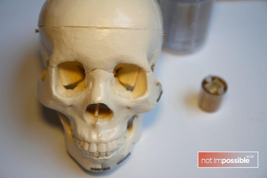 epibone-skull.jpg